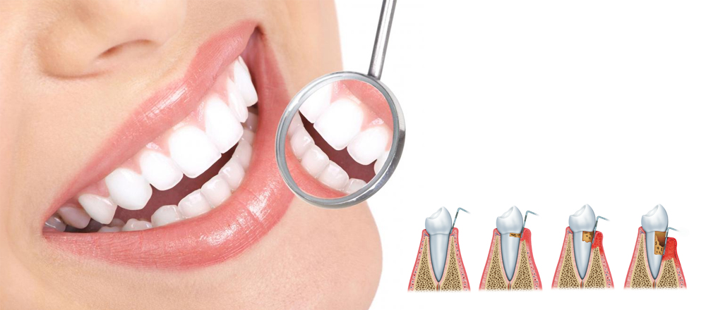 Periodoncia Trartamiento DentAesthetic Corporation