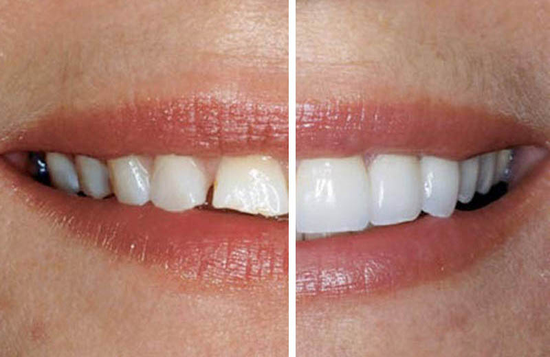 carillas-dentales-tratamiento-dentaesthetic-corporation