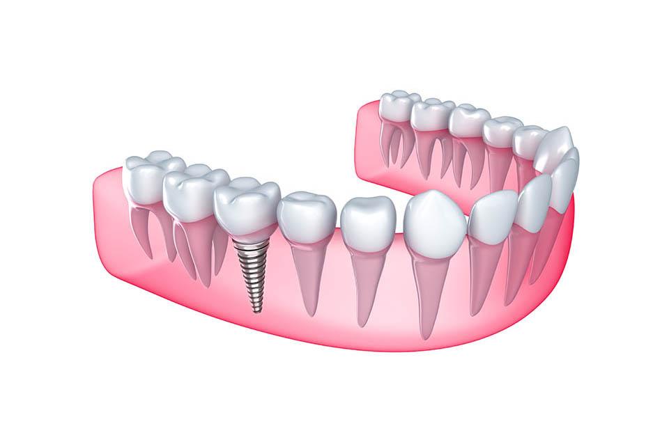 implantologia-dental-promocion
