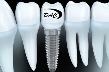 Implantes dentales inmediatos y postextracción