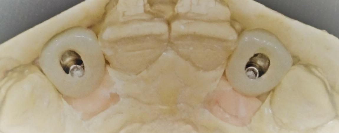 """""""Chimeneas"""" en las prótesis atornilladas"""