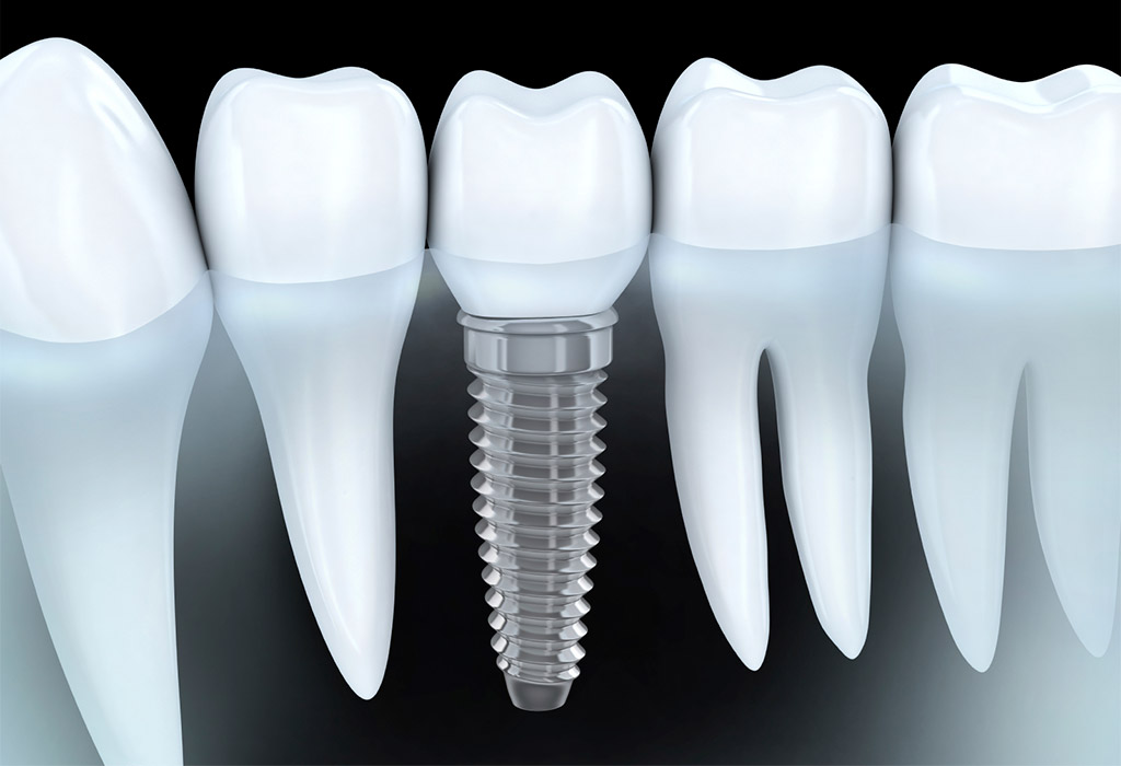 Implantología dental en Sabadell